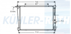 Hyundai Wasserkühler (253104A150 253104A1460)